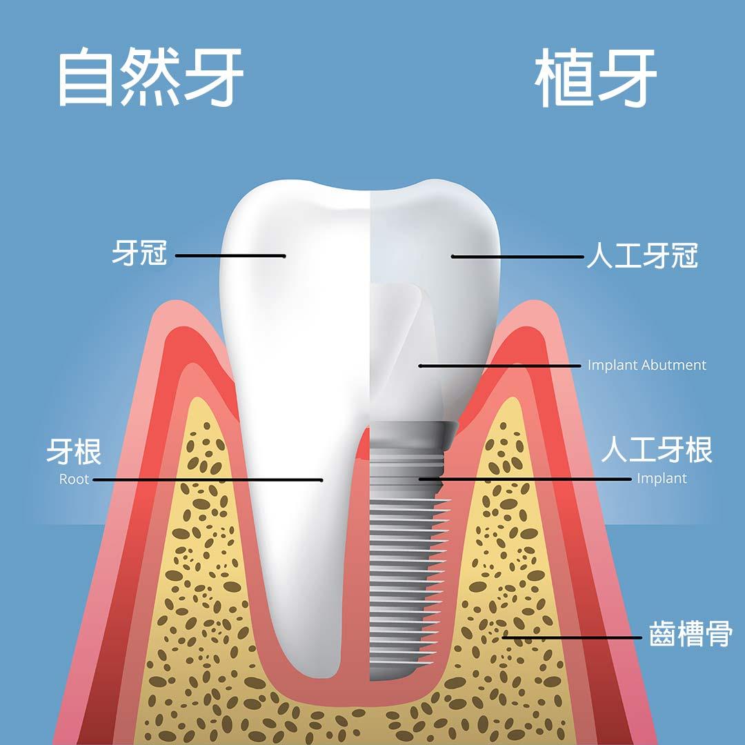 什麼是植牙?