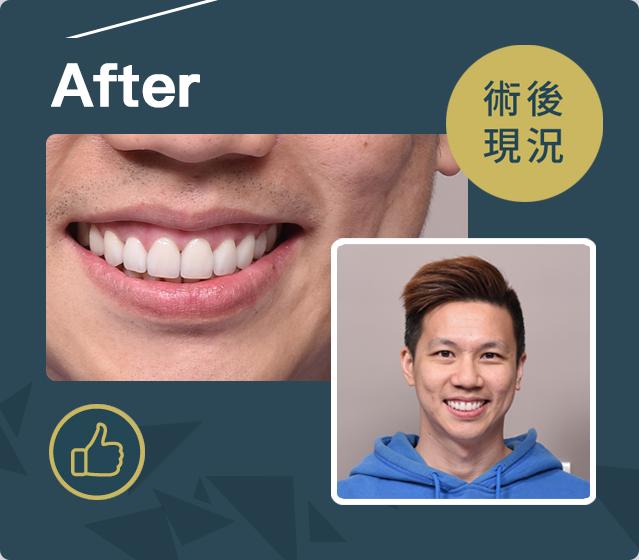 立頓牙醫患者-廖國翔案例After
