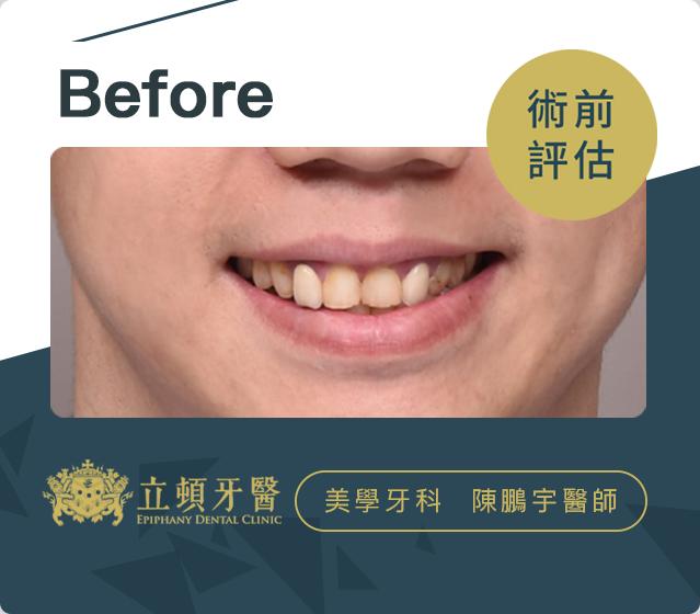 立頓牙醫患者-廖國翔案例Before
