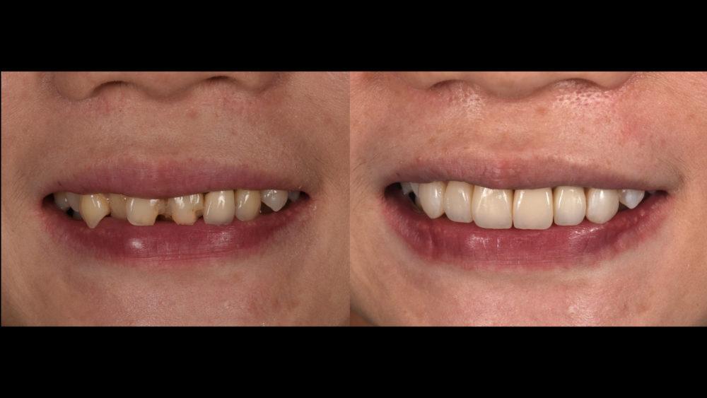 全瓷冠牙套已成抽神經後必備!你知道原因嗎?