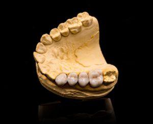 artificial-teeth-PT5UFWX (1)